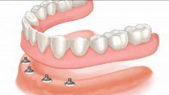 Protez Dişlerin Bakımı Nasıl Yapılır?
