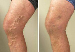 Varisli Bacak / Normal Bacak
